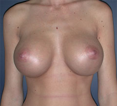 After-Breast Implants