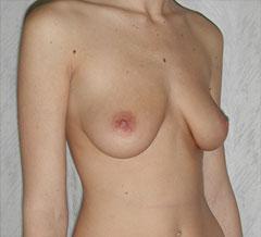 Before-Breast Implants