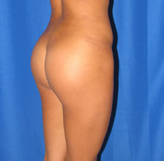 After-Buttock Implants