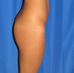 Before-Buttock Implants