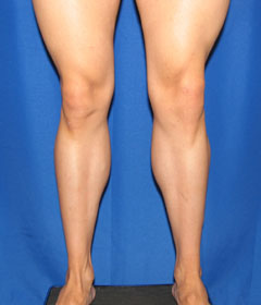 After-Calf Implants