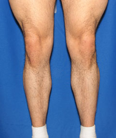 Before-Calf Implants