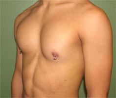 After-Pec Implants