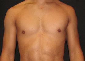 Before-Pec Implants